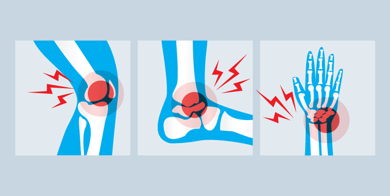 Images of an injured knee, ankle, and wrist